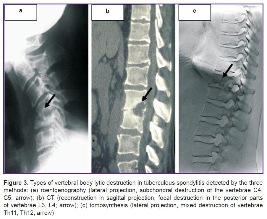 Субхондральный склероз замыкательных пластинок тел позвонков лечение
